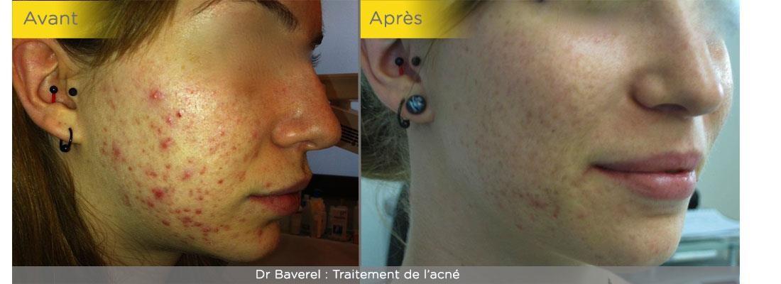 La LED pour la peau à Valence - Dr Brun