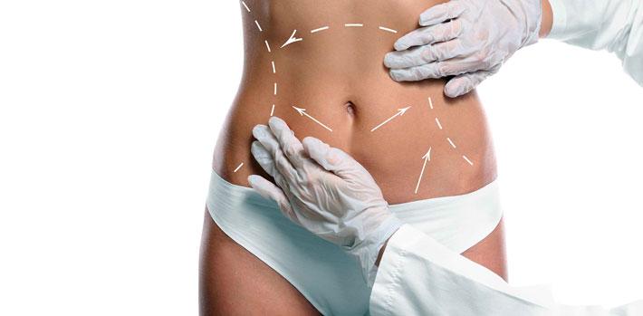 Chirurgie esthétique du ventre ou abdominoplastie à Valence - Dr Brun