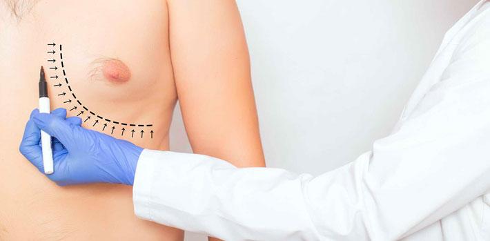 Gynecomastie à Valence - Dr Alexandre Brun